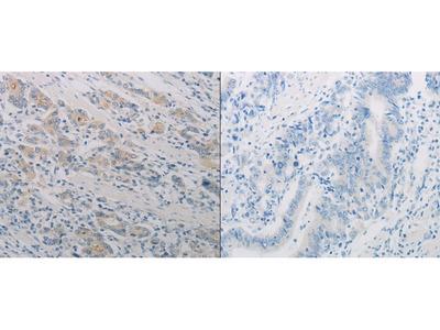 Anti-PTAFR Rabbit Polyclonal Antibody