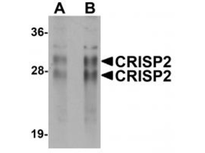 Rabbit Polyclonal CRISP2 Antibody