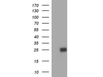 Rabbit Polyclonal Peroxiredoxin 2 Antibody