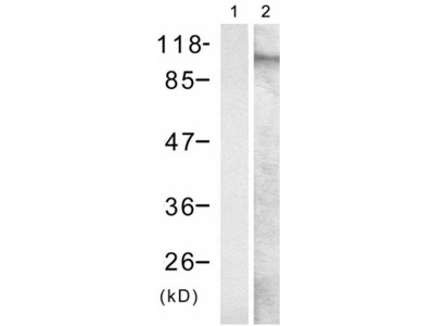 Anti-GRIA1 (phospho-Ser849) Rabbit Polyclonal Antibody