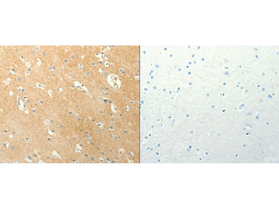 Anti-LPAR3 Rabbit Polyclonal Antibody