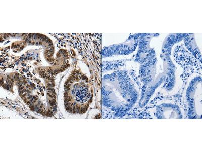 Anti-KLK7 Rabbit Polyclonal Antibody
