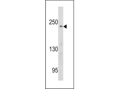 Rabbit polyclonal PCM-1 Antibody (Center)