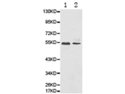 Anti-ATP6AP1 Rabbit Polyclonal Antibody
