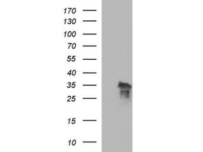 POLR3GL mouse monoclonal antibody, clone OTI5E8 (formerly 5E8)