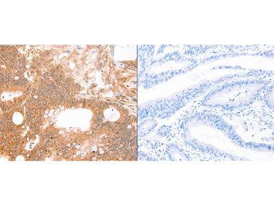 Anti-LTA Rabbit Polyclonal Antibody