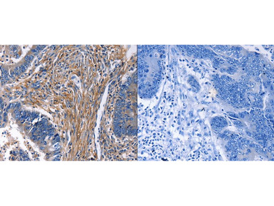 Anti-CXCR5 Rabbit Polyclonal Antibody