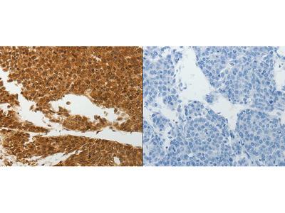 Anti-SOCS7 Rabbit Polyclonal Antibody