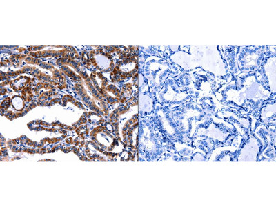 Anti-FBN1 Rabbit Polyclonal Antibody