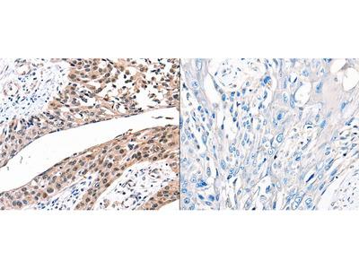 Anti-GJB2 Rabbit Polyclonal Antibody