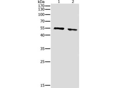 Anti-pan-AKT Rabbit Polyclonal Antibody