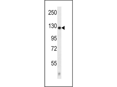 Rabbit polyclonal CACNA2D2 Antibody (Center)