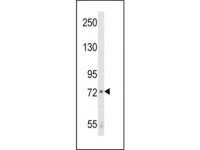 Rabbit polyclonal ALOX12 Antibody (C-term)