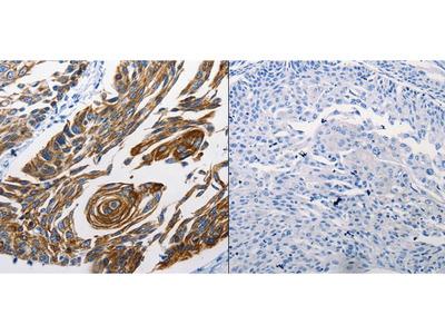Anti-KRT16 Rabbit Polyclonal Antibody