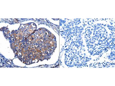 Anti-IL10RB Rabbit Polyclonal Antibody