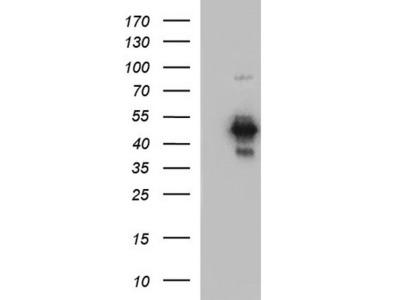 Rabbit Polyclonal Coxsackie Adenovirus Receptor Antibody