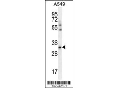 Rabbit polyclonal SLC25A6 Antibody (Center)