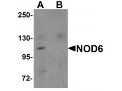 Rabbit Polyclonal NOD6 Antibody