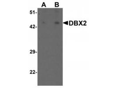 Rabbit Polyclonal DBX2 Antibody