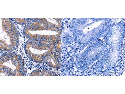 Anti-CKIP-1 Rabbit Polyclonal Antibody