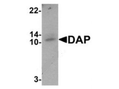 Rabbit Polyclonal DAP Antibody