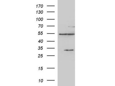 Rabbit Polyclonal CYP1B1 Antibody