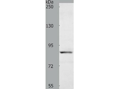 Anti-ACAD11 Rabbit Polyclonal Antibody