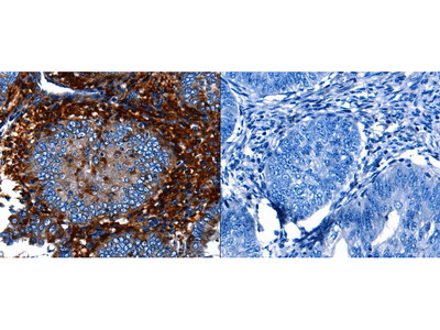 Anti-CNGA2 Rabbit Polyclonal Antibody