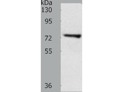 Anti-TRIM32 Rabbit Polyclonal Antibody