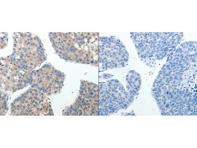Anti-ABI3BP Rabbit Polyclonal Antibody