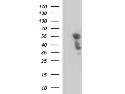 Rabbit Polyclonal PTPN1 Antibody