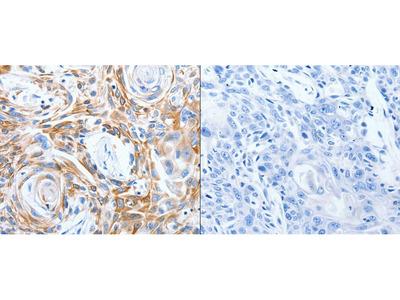 Anti-LRIG3 Rabbit Polyclonal Antibody