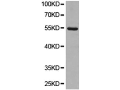 Anti-GGT1 Rabbit Polyclonal Antibody