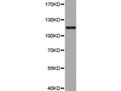 Anti-MTTP Rabbit Polyclonal Antibody