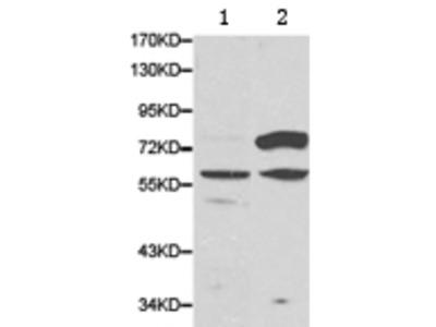 Anti-CES2 Rabbit Polyclonal Antibody