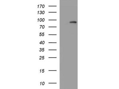 Rabbit Polyclonal Prolactin Receptor Antibody