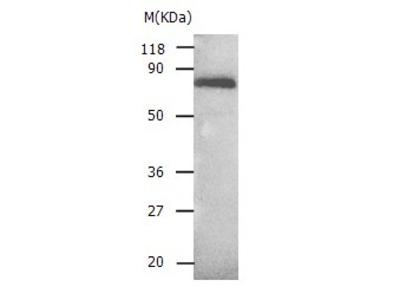 Anti-ALB Rabbit Polyclonal Antibody