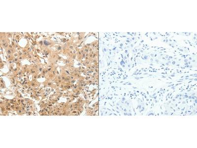 Anti-COL4A1 Rabbit Polyclonal Antibody