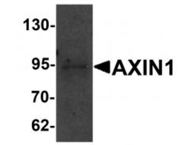 Rabbit Polyclonal AXIN1 Antibody