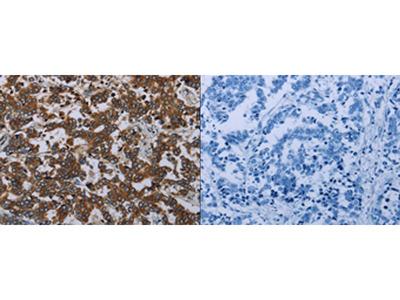 Anti-AVEN Rabbit Polyclonal Antibody