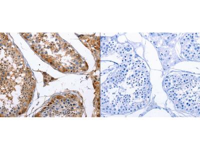 Anti-PTGS1 Rabbit Polyclonal Antibody
