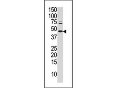 Rabbit polyclonal Phospho-cJun(S63) Antibody