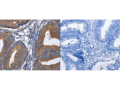 Anti-AP1G1 Rabbit Polyclonal Antibody