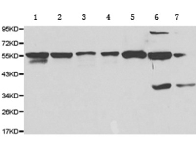Anti-P4HB Rabbit Polyclonal Antibody
