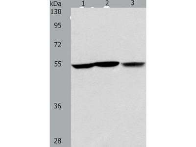 Anti-ALDH9A1 Rabbit Polyclonal Antibody