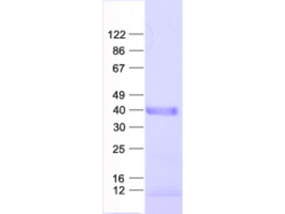 SNAP43 (SNAPC1) (NM_003082) Human Recombinant Protein