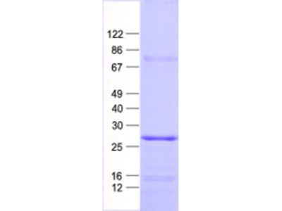 SCN2B (NM_004588) Human Recombinant Protein