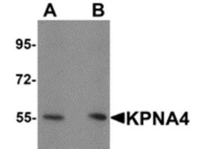 Rabbit Polyclonal KPNA4 Antibody