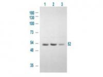 Rabbit polyclonal GSK3 Alpha phospho S21 antibody