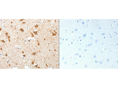 Anti-AKAP4 Rabbit Polyclonal Antibody